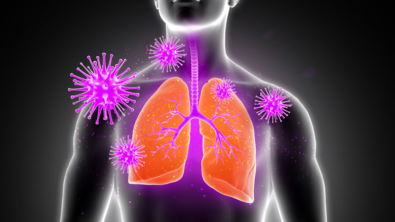 Supplémentation en vitamine D pour prévenir les infections respiratoires aiguës